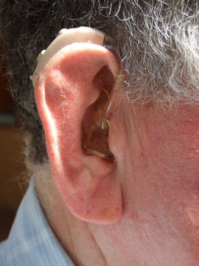 How Hearing Aids is effective in Hearing Loss!