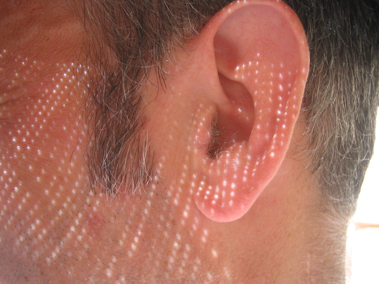 Safe Microsuction Ear Wax Removal with Possible Side Effects!
